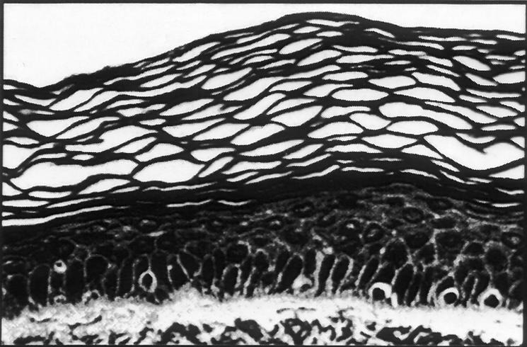 Haut vor der Behandlung durch Mikrodermabrasion