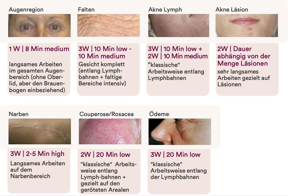 Anwendungsbereiche der Mikrodermabrasion: Falten, Augenregion, unreine Haut uvm.